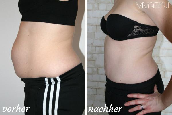 Ergebnis 4 Monate nach Rektusdiastase OP plus Bauchdeckenstraffung