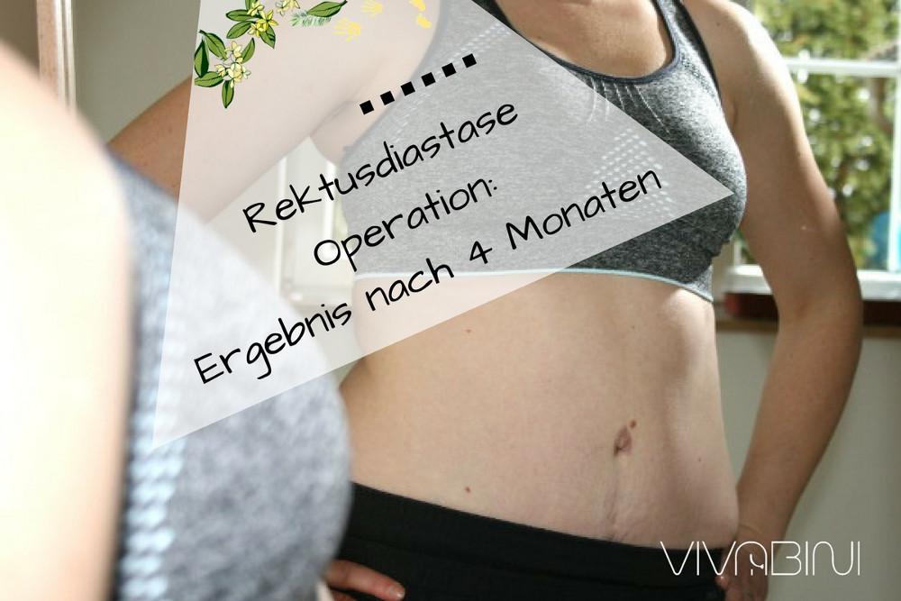 Rektusdiastase Operation: Regeneration und Ergebnis nach vier Monaten