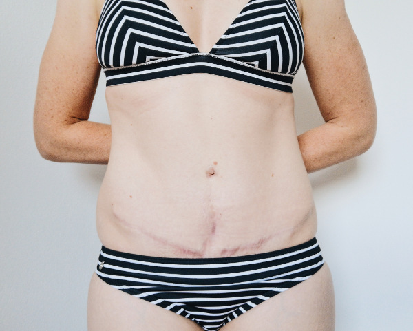Narbe zwei Jahre nach Rektusdiastase Op und Bauchdeckenstraffung