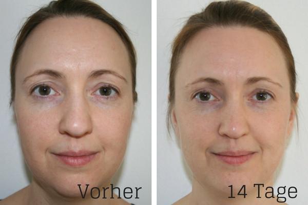Test Hyaluron-Gel Develle vorher und nach 2 Wochen Anwendung