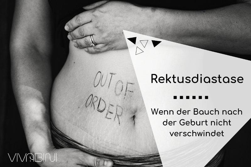 Rektusdiastase: Wenn der Bauch nach der Schwangerschaft nicht weg geht