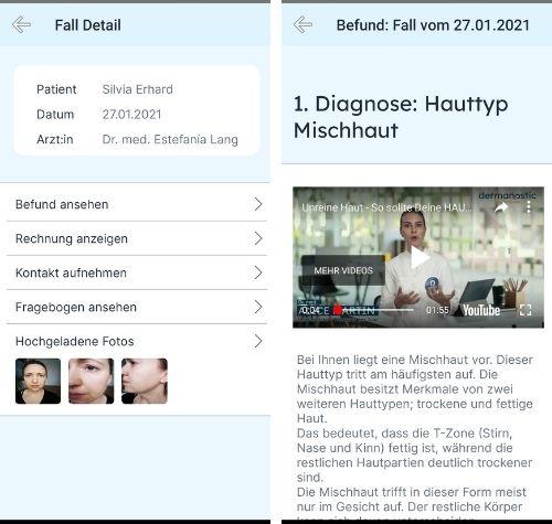 Dermanostic App Diagnose